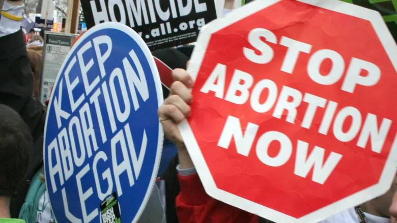 Embrionas – mano kūnas, ląstelių košė, ar kitas žmogus? Ką mokslas sako apie abortus.